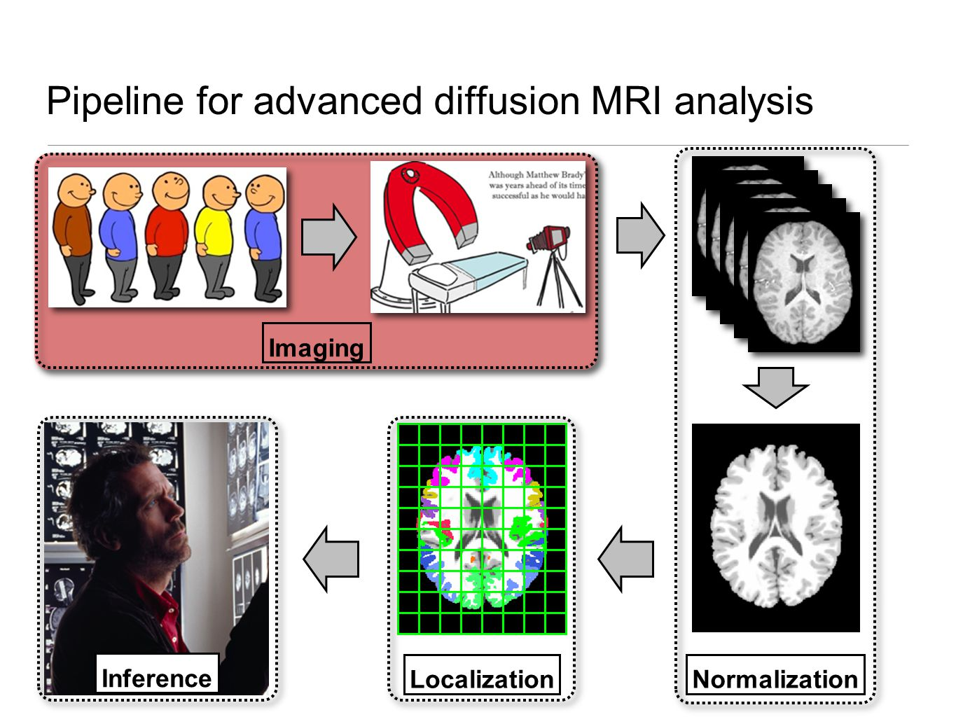 Inference Normalization Pipeline for advanced diffusion MRI analysis Imaging Localization