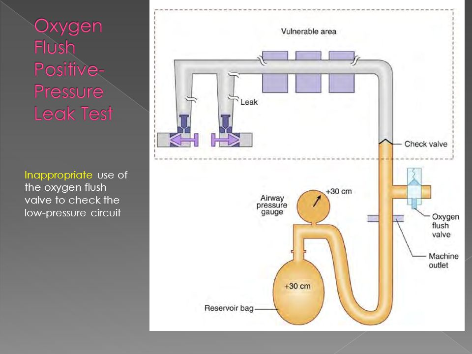 Inappropriate use of the oxygen flush valve to check the low-pressure circuit