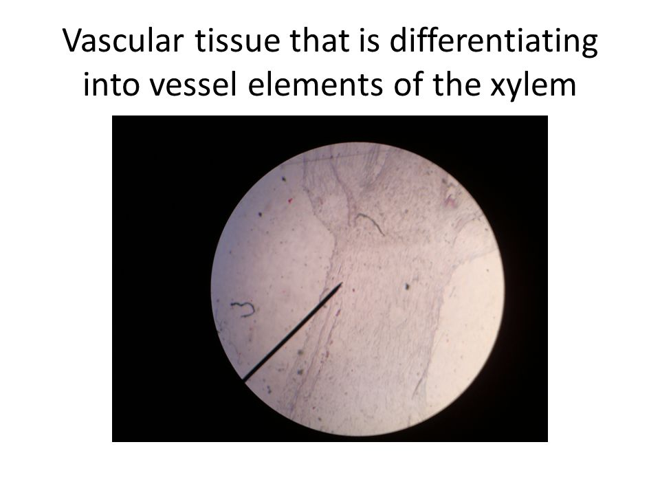 Vascular tissue that is differentiating into vessel elements of the xylem