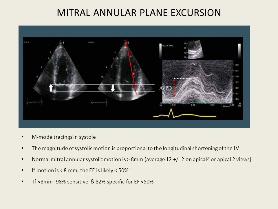 MITRAL ANNULAR PLANE EXCURSION M-mode tracings in systole The magnitude of systolic motion is proportional to the longitudinal shortening of the LV No