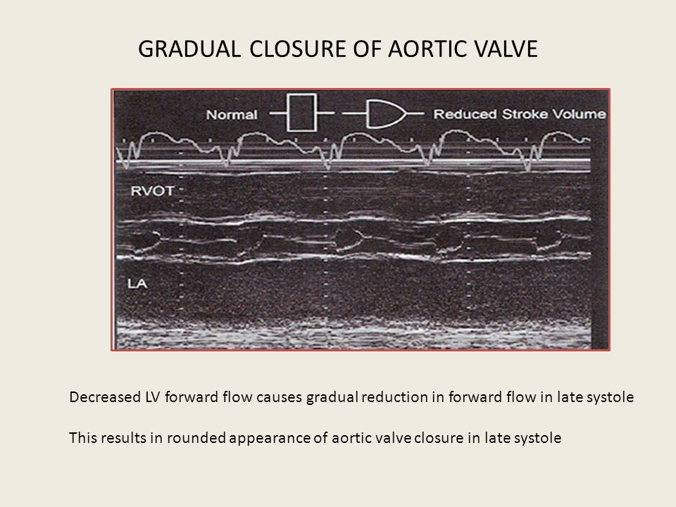 GRADUAL CLOSURE OF AORTIC VALVE Decreased LV forward flow causes gradual reduction in forward flow in late systole This results in rounded appearance
