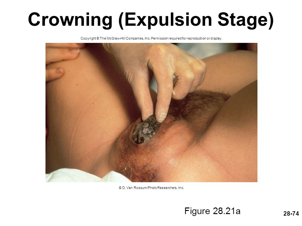 28-74 Crowning (Expulsion Stage) Figure 28.21a Copyright © The McGraw-Hill Companies, Inc. Permission required for reproduction or display. © D. Van R