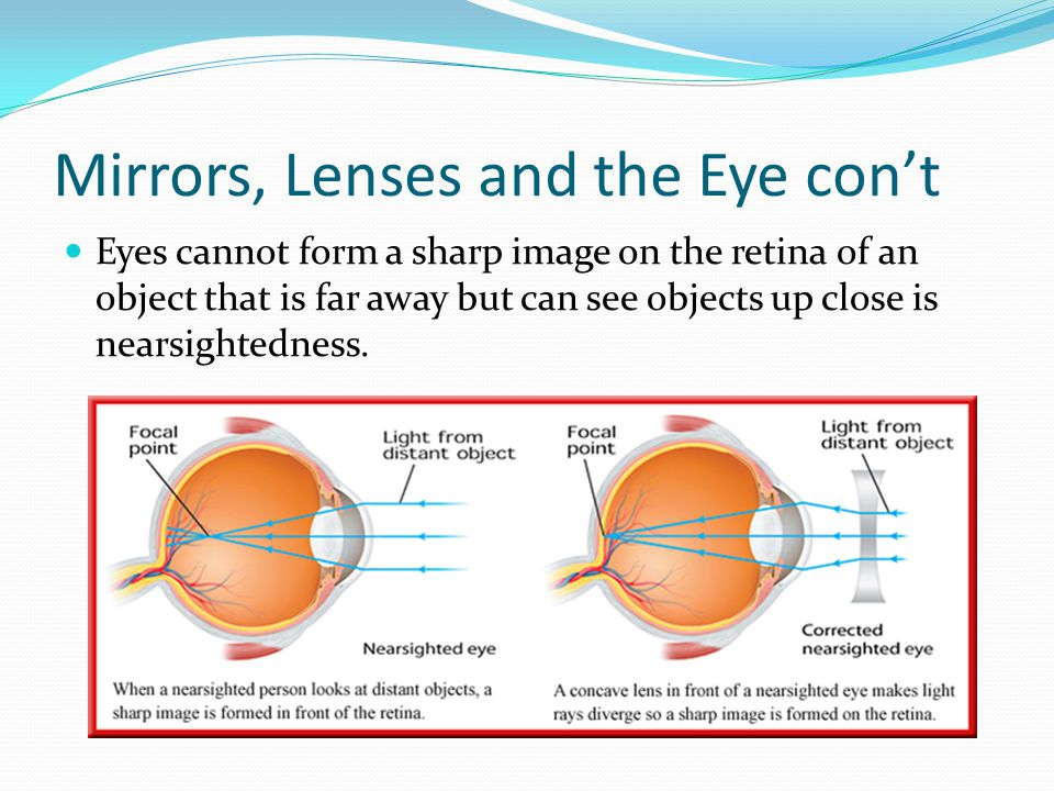 Mirrors, Lenses and the Eye con't Eyes cannot form a sharp image on the retina of an object that is far away but can see objects up close is nearsight