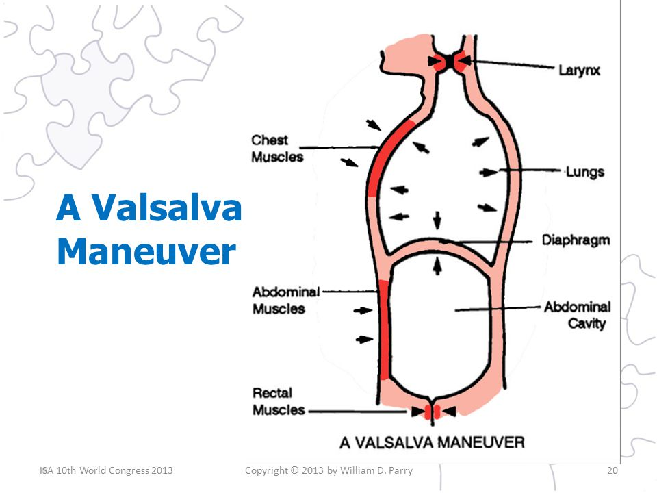 A Valsalva Maneuver Copyright © 2013 by William D. Parry20ISA 10th World Congress 2013