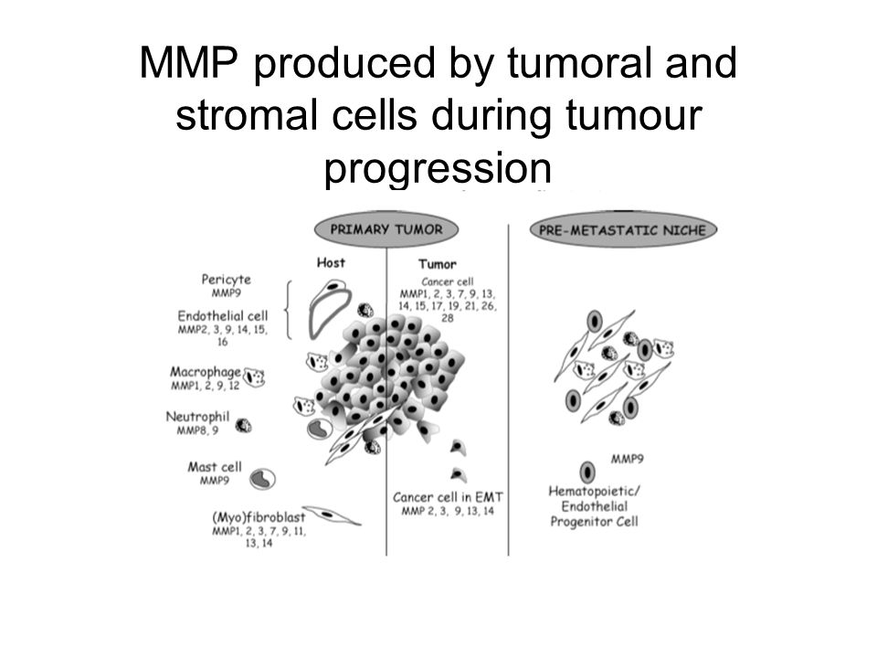 MMP produced by tumoral and stromal cells during tumour progression