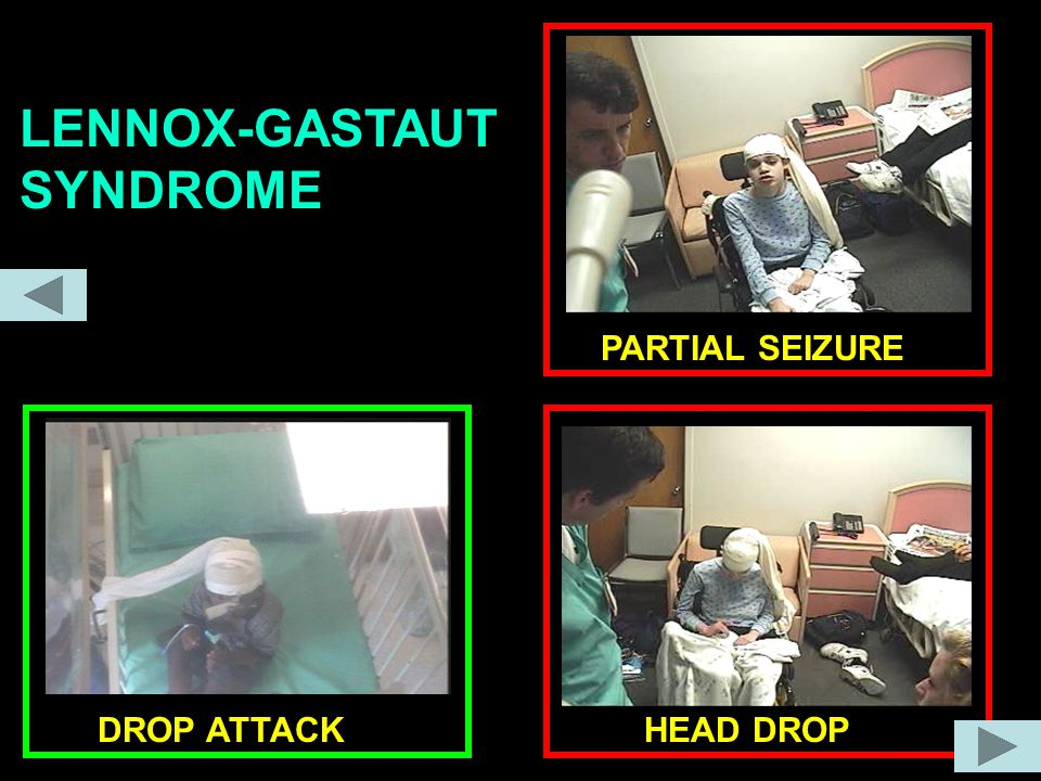 LENNOX-GASTAUT SYNDROME PARTIAL SEIZURE HEAD DROPDROP ATTACK