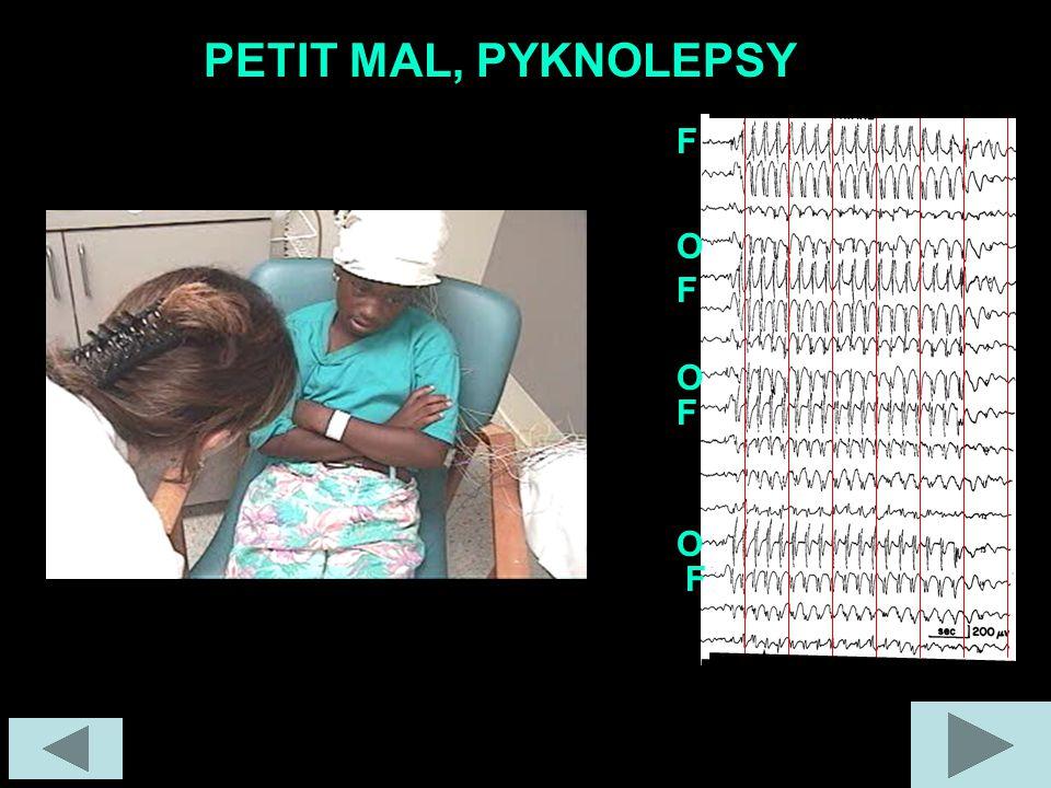 PETIT MAL, PYKNOLEPSY F F F F O O O