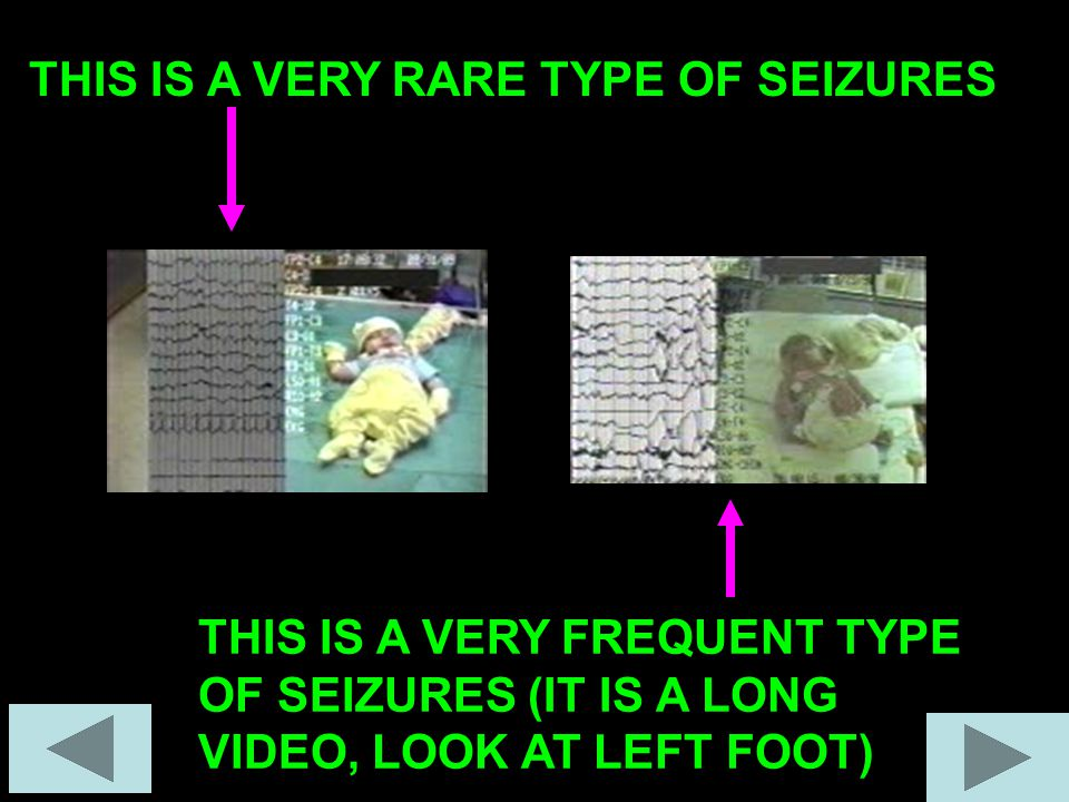 THIS IS A VERY RARE TYPE OF SEIZURES THIS IS A VERY FREQUENT TYPE OF SEIZURES (IT IS A LONG VIDEO, LOOK AT LEFT FOOT)