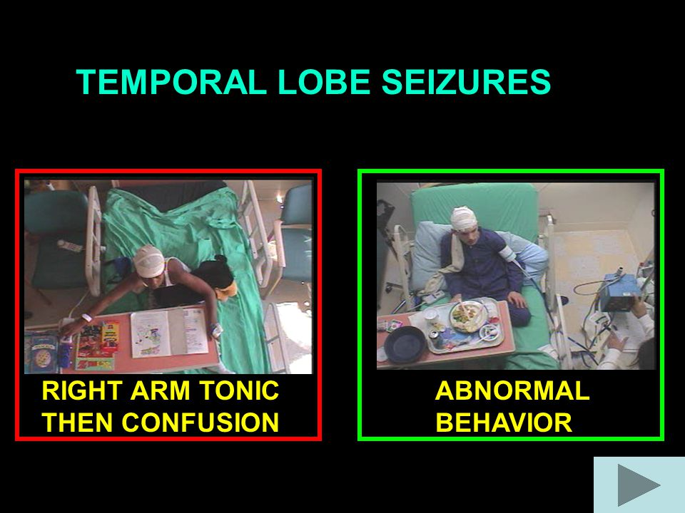 TEMPORAL LOBE SEIZURES RIGHT ARM TONIC THEN CONFUSION ABNORMAL BEHAVIOR