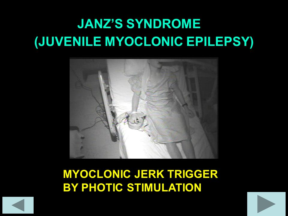 (JUVENILE MYOCLONIC EPILEPSY) JANZ'S SYNDROME MYOCLONIC JERK TRIGGER BY PHOTIC STIMULATION
