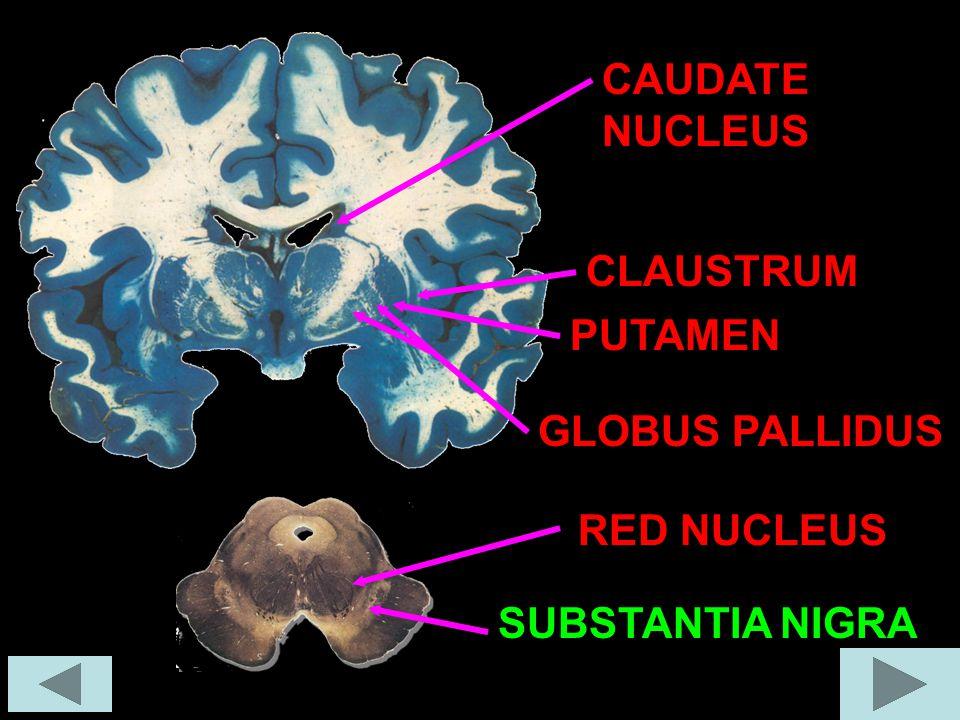 GLOBUS PALLIDUS RED NUCLEUS SUBSTANTIA NIGRA PUTAMEN CLAUSTRUM CAUDATE NUCLEUS
