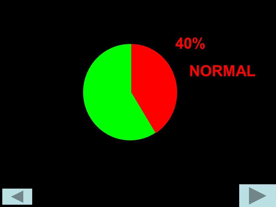 40% NORMAL