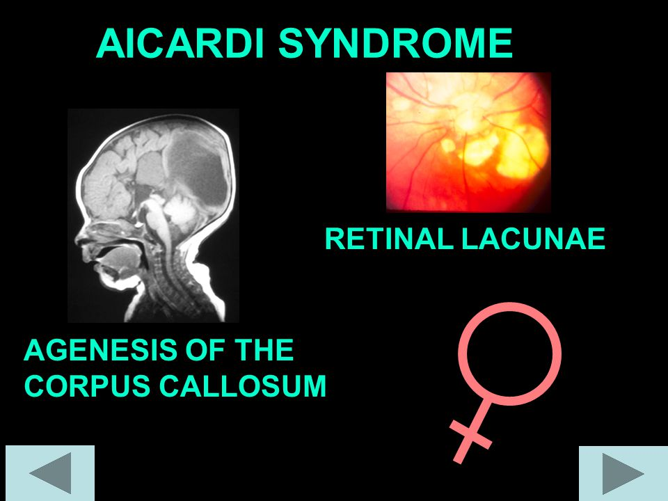 AICARDI SYNDROME AGENESIS OF THE CORPUS CALLOSUM RETINAL LACUNAE