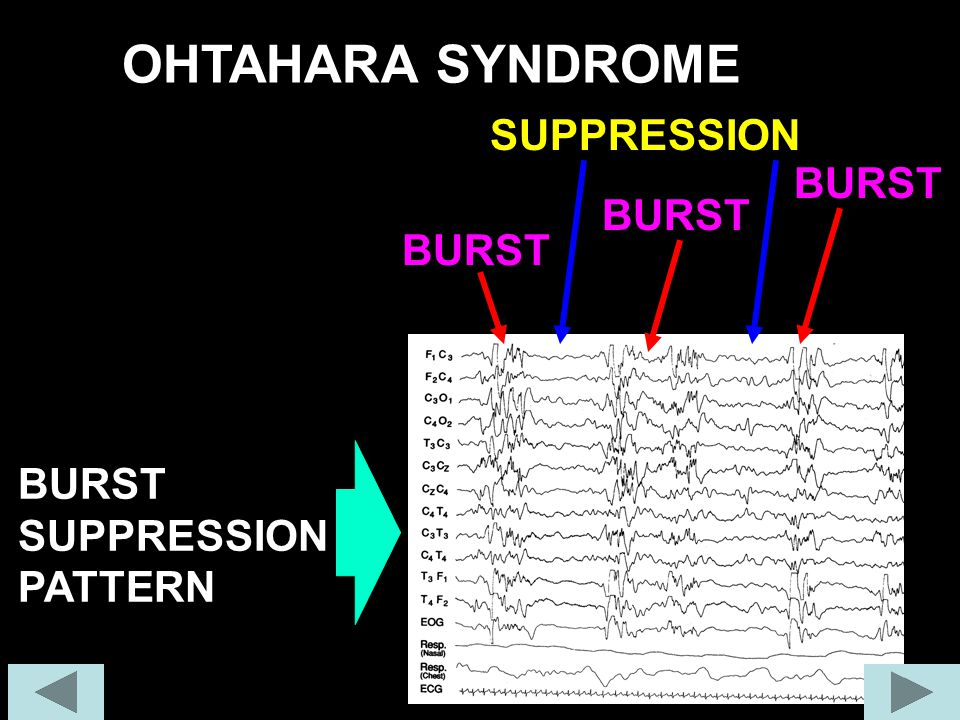 OHTAHARA SYNDROME BURST SUPPRESSION PATTERN BURST SUPPRESSION BURST