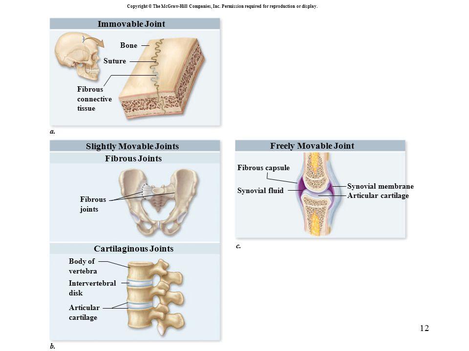 12 Body of vertebra Fibrous joints Fibrous Joints Intervertebral disk Articular cartilage Fibrous connective tissue Bone Suture Immovable Joint a. Sli