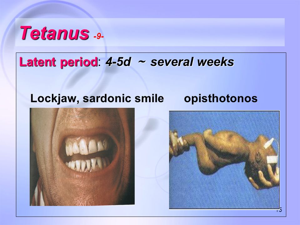 15 Tetanus Tetanus -9- Latent period4-5d ~ several weeks Latent period: 4-5d ~ several weeks Lockjaw, sardonic smile opisthotonos