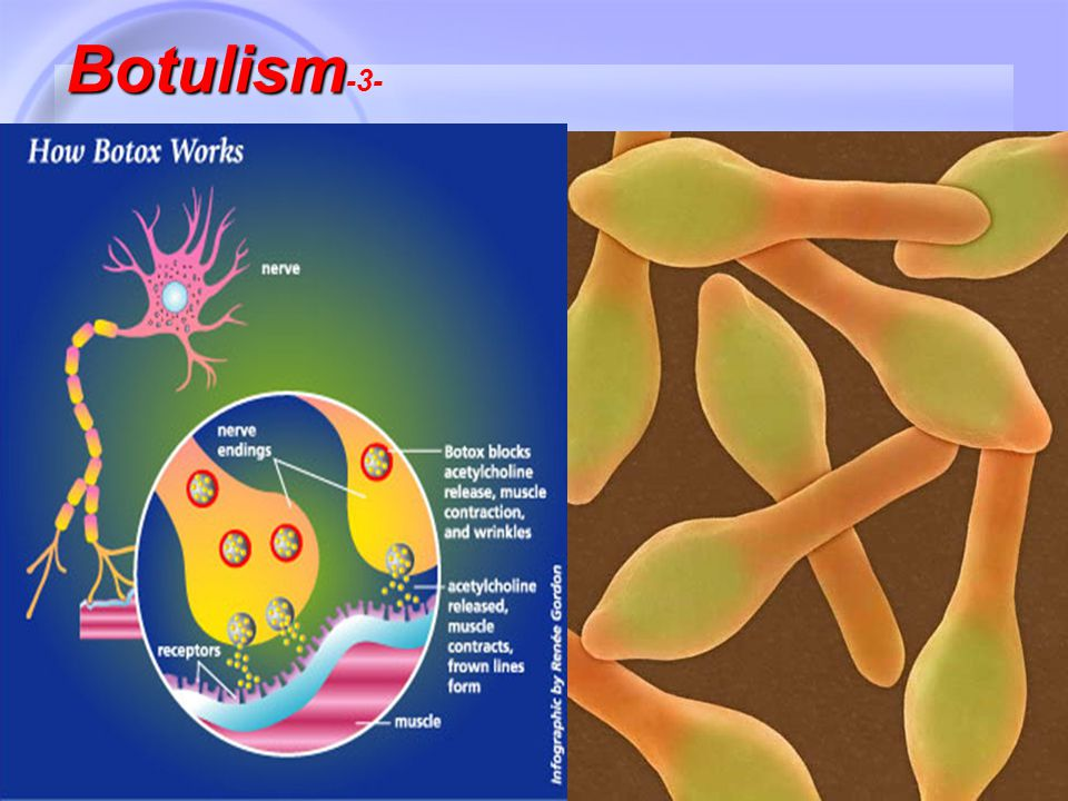 20 Botulism Botulism -3-