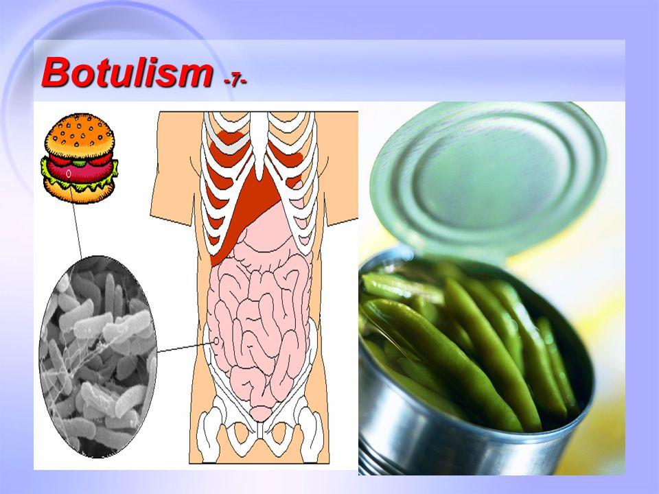 24 Botulism -7-