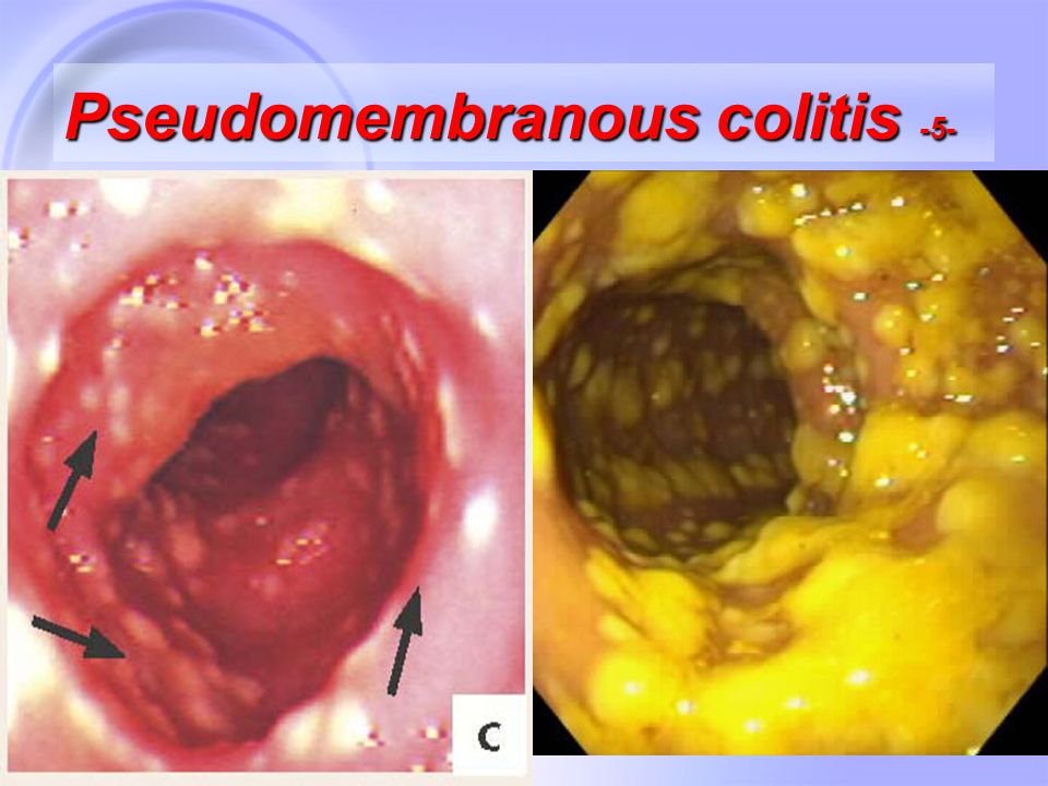 30 Pseudomembranous colitis -5-