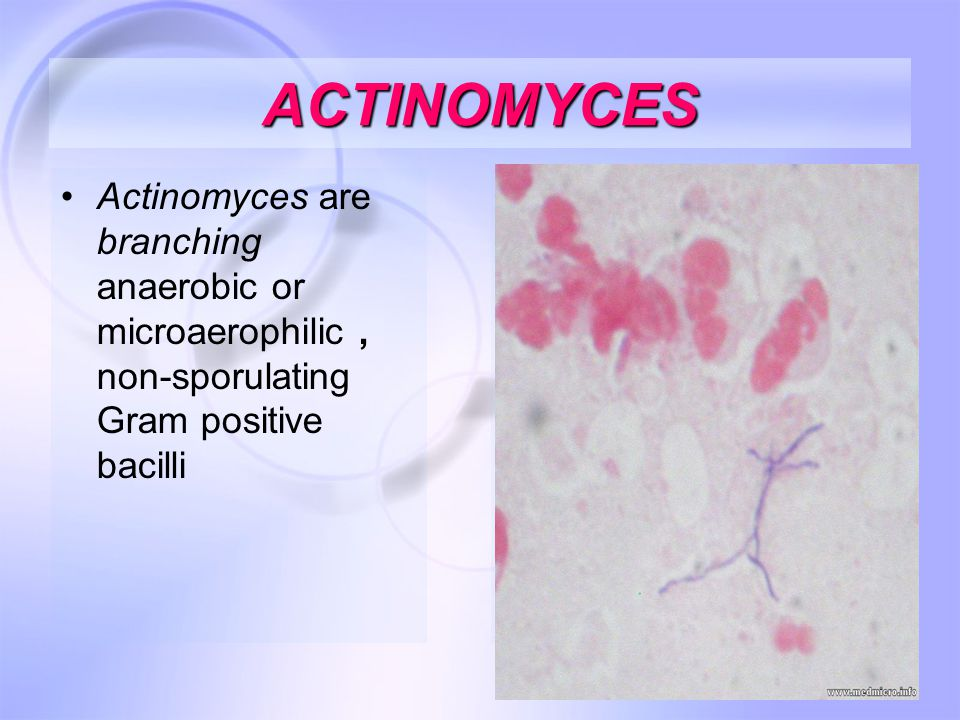 46 ACTINOMYCES Actinomyces are branching anaerobic or microaerophilic, non-sporulating Gram positive bacilli
