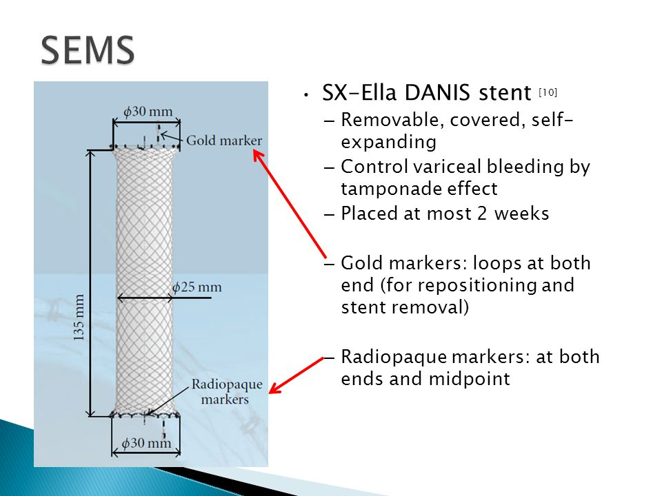 SX-Ella DANIS stent [10] – Removable, covered, self- expanding – Control variceal bleeding by tamponade effect – Placed at most 2 weeks – Gold markers