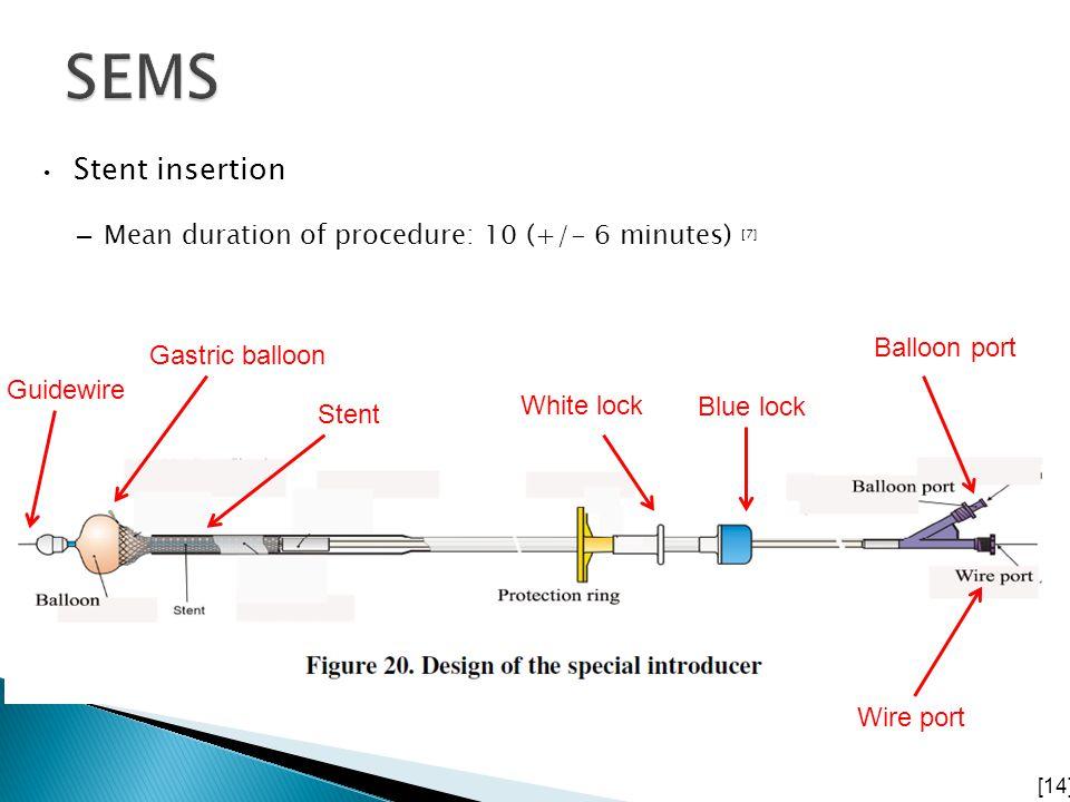 Stent insertion – Mean duration of procedure: 10 (+/- 6 minutes) [7] [14] Guidewire Gastric balloon Stent Balloon port Wire port Blue lock White lock
