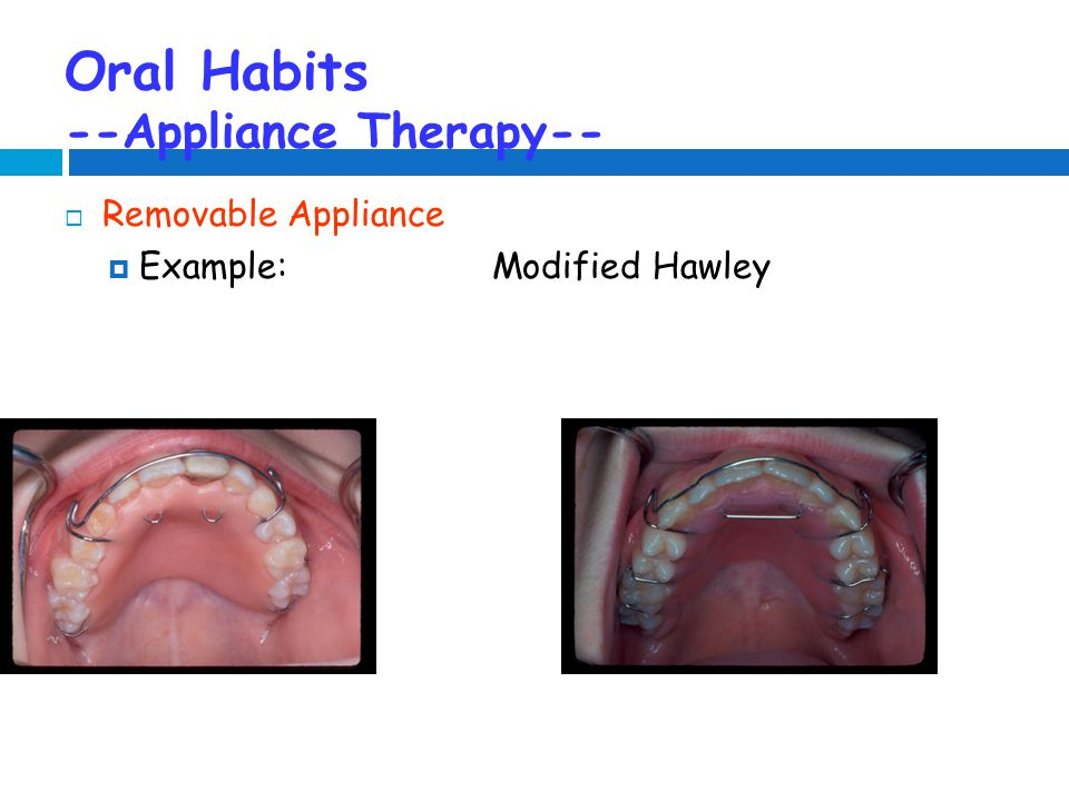Oral Habits --Appliance Therapy--  Removable Appliance  Example:Modified Hawley