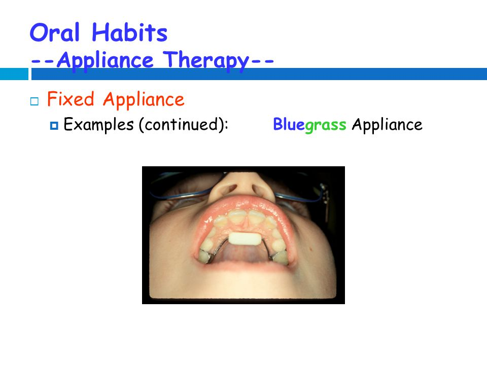 Oral Habits --Appliance Therapy--  Fixed Appliance  Examples (continued):Bluegrass Appliance