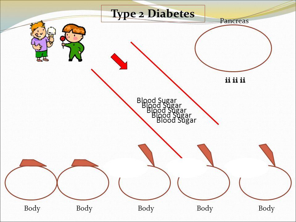 ii Pancreas Body ii Body ii Body Blood Sugar Type 2 Diabetes Blood Sugar