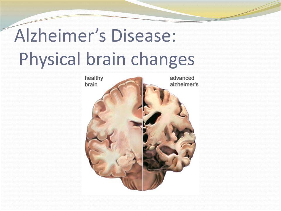 Alzheimer's Disease: Physical brain changes