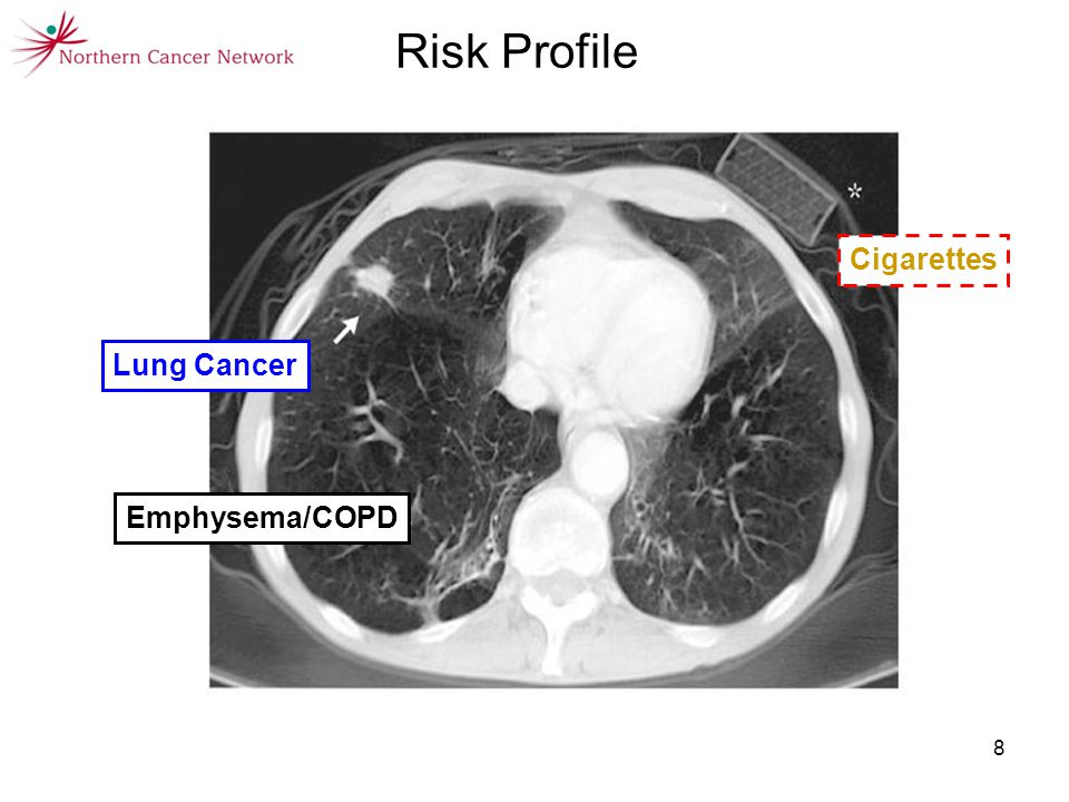 8 Risk Profile Cigarettes Lung Cancer Emphysema/COPD