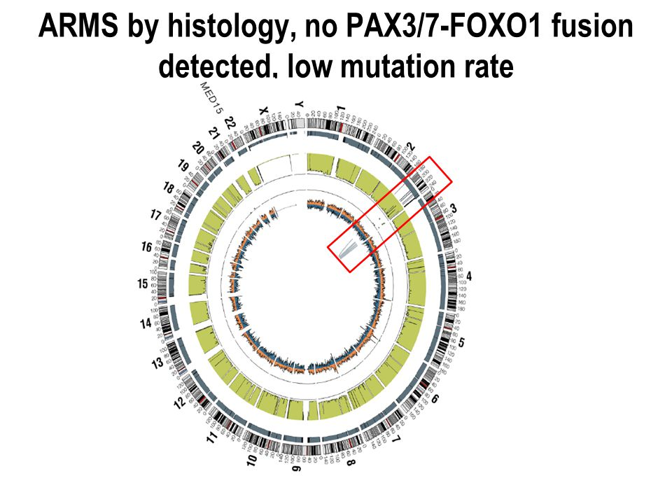 ARMS by histology, no PAX3/7-FOXO1 fusion detected, low mutation rate