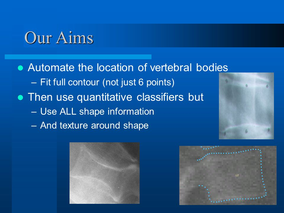 Our Aims Automate the location of vertebral bodies –Fit full contour (not just 6 points) Then use quantitative classifiers but –Use ALL shape information –And texture around shape