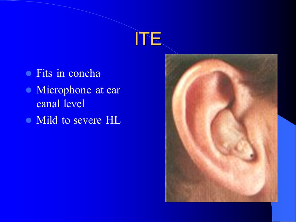 ITE Fits in concha Microphone at ear canal level Mild to severe HL
