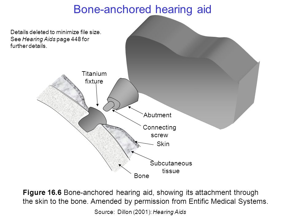 Figure 16.6 Bone-anchored hearing aid, showing its attachment through the skin to the bone.