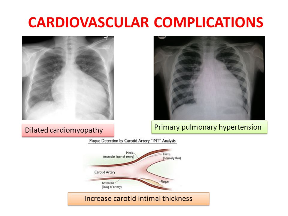 CARDIOVASCULAR COMPLICATIONS Primary pulmonary hypertension Dilated cardiomyopathy Increase carotid intimal thickness
