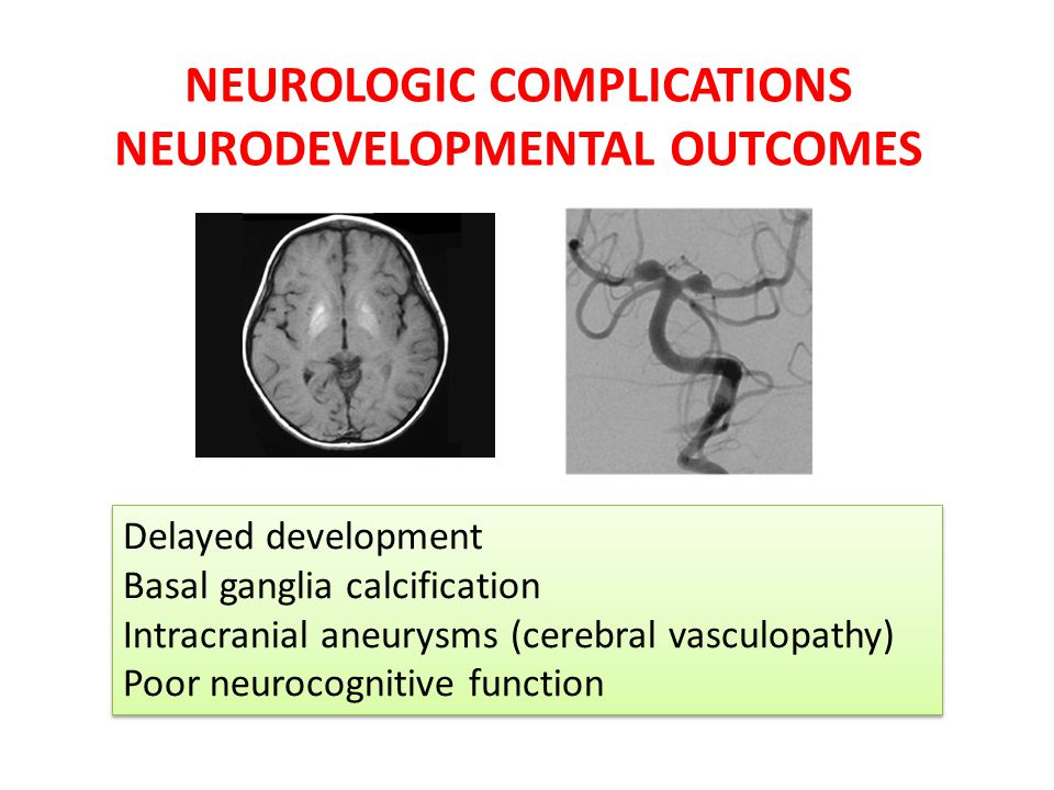 NEUROLOGIC COMPLICATIONS NEURODEVELOPMENTAL OUTCOMES Delayed development Basal ganglia calcification Intracranial aneurysms (cerebral vasculopathy) Po