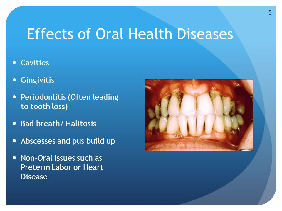 Effects of Oral Health Diseases Cavities Gingivitis Periodontitis (Often leading to tooth loss) Bad breath/ Halitosis Abscesses and pus build up Non-Oral issues such as Preterm Labor or Heart Disease 5