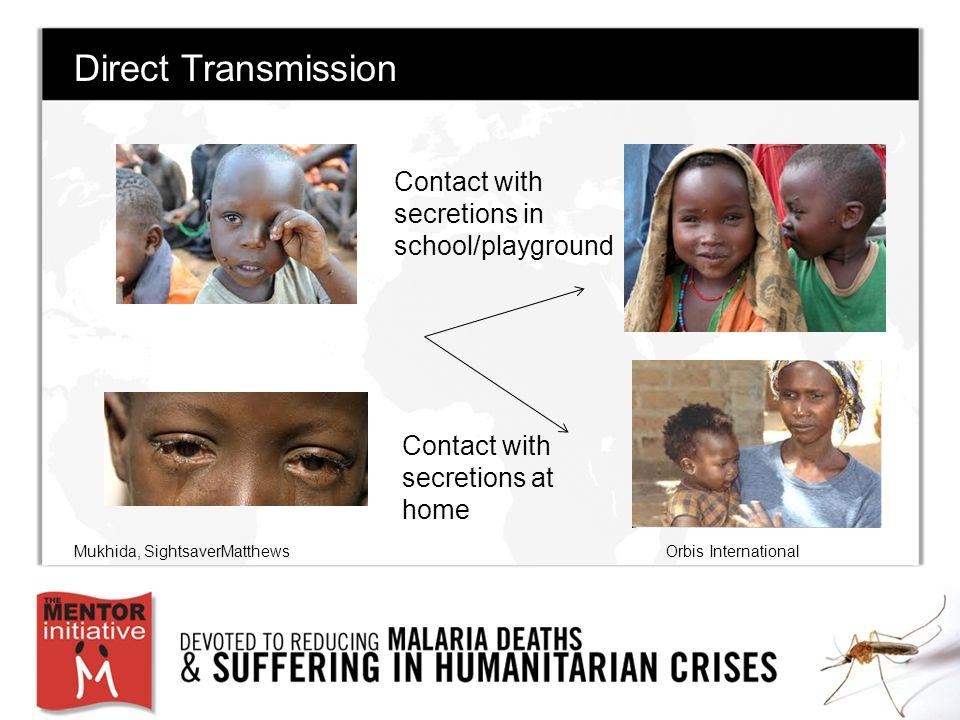 Direct Transmission Contact with secretions at home Contact with secretions in school/playground Mukhida, SightsaverMatthewsOrbis International