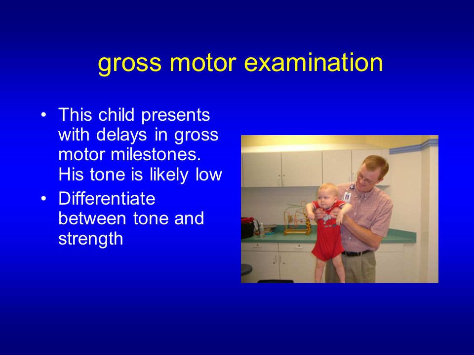 gross motor examination This child presents with delays in gross motor milestones.