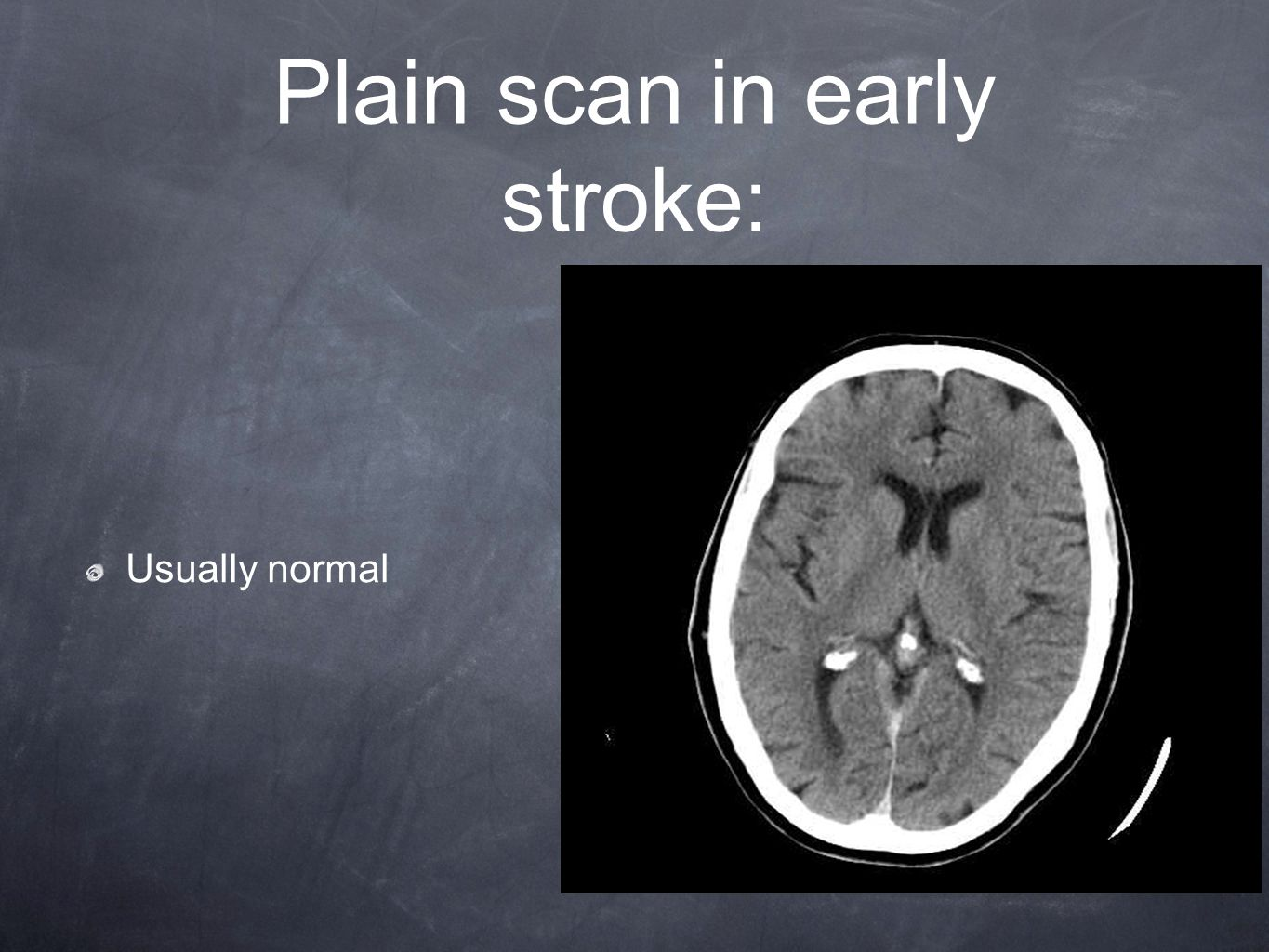 Plain scan in early stroke: Usually normal