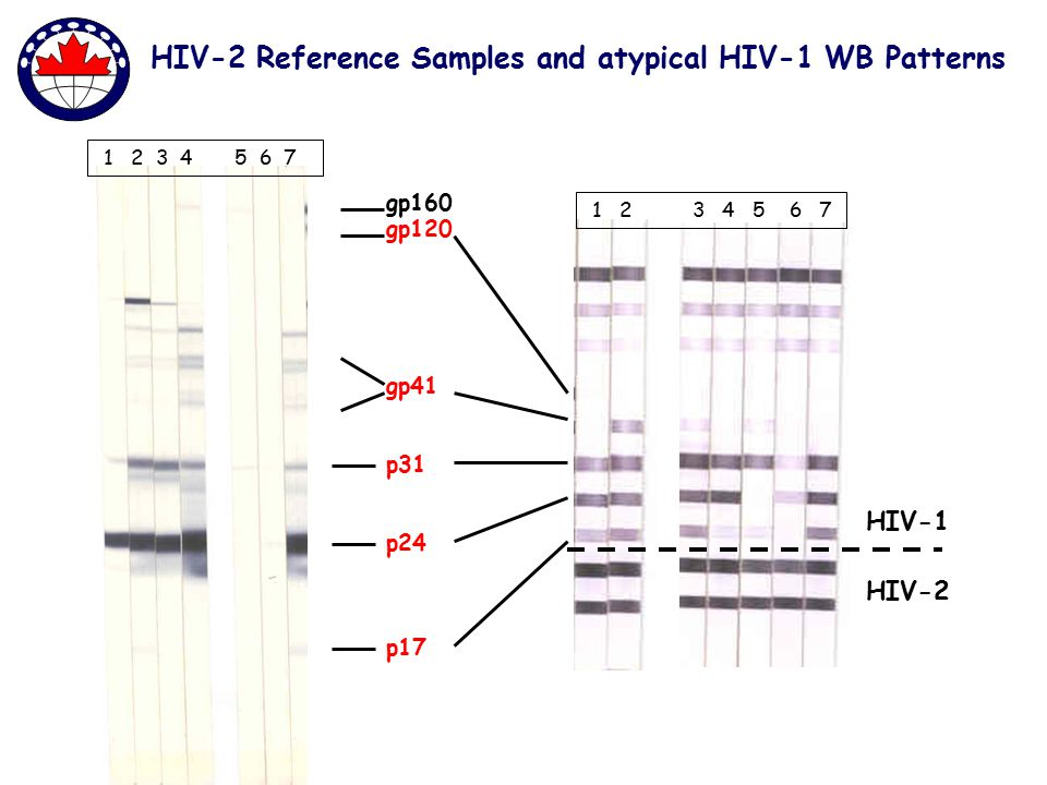 HIV-2 HIV-1 gp160 gp120 p24 p31 p17 gp41 HIV-2 Reference Samples and atypical HIV-1 WB Patterns 1 2 3 4 5 6 7