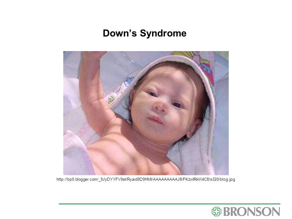 http://bp0.blogger.com/_9JyDYYFV9eI/Ryaid9D9HMI/AAAAAAAAAJ8/FKzwIRkW4C8/s320/blog.jpg Down's Syndrome