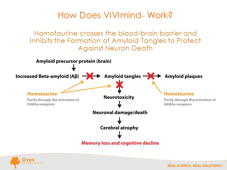 How Does VIVImind ™ Work.