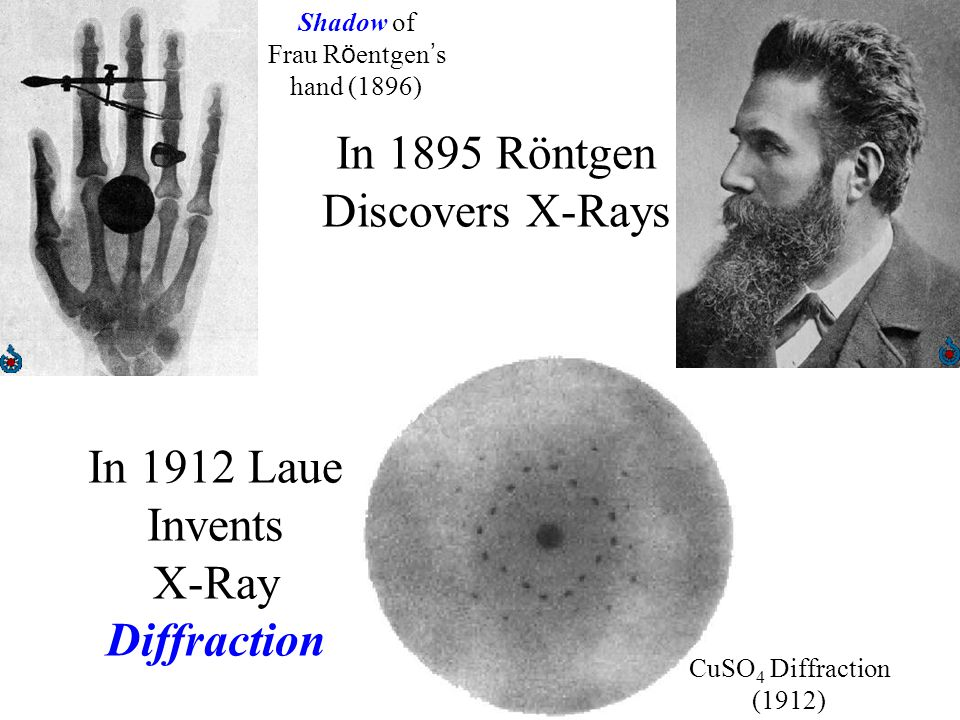 In 1895 Röntgen Discovers X-Rays Shadow of Frau R ö entgen ' s hand (1896) In 1912 Laue Invents X-Ray Diffraction CuSO 4 Diffraction (1912)