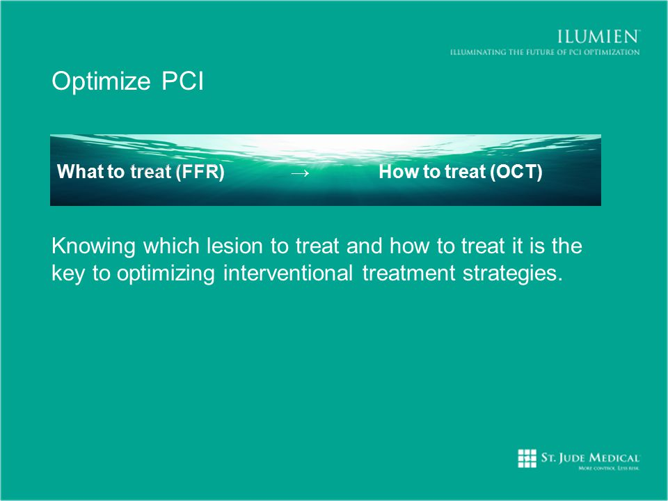 Optimize PCI Knowing which lesion to treat and how to treat it is the key to optimizing interventional treatment strategies.
