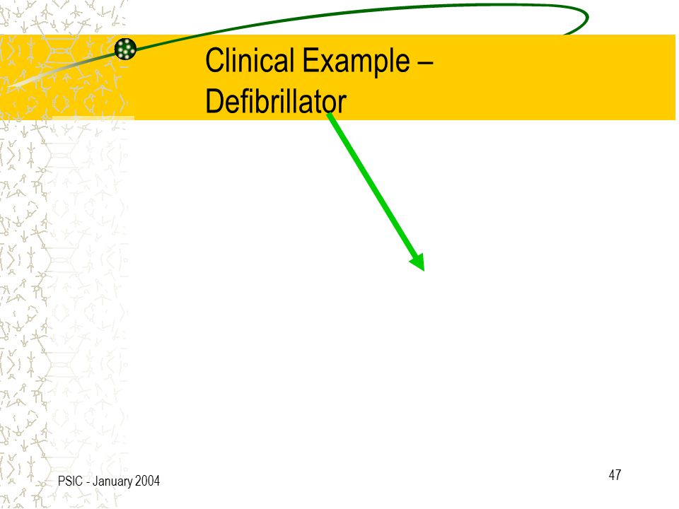 PSIC - January 2004 47 Clinical Example – Defibrillator