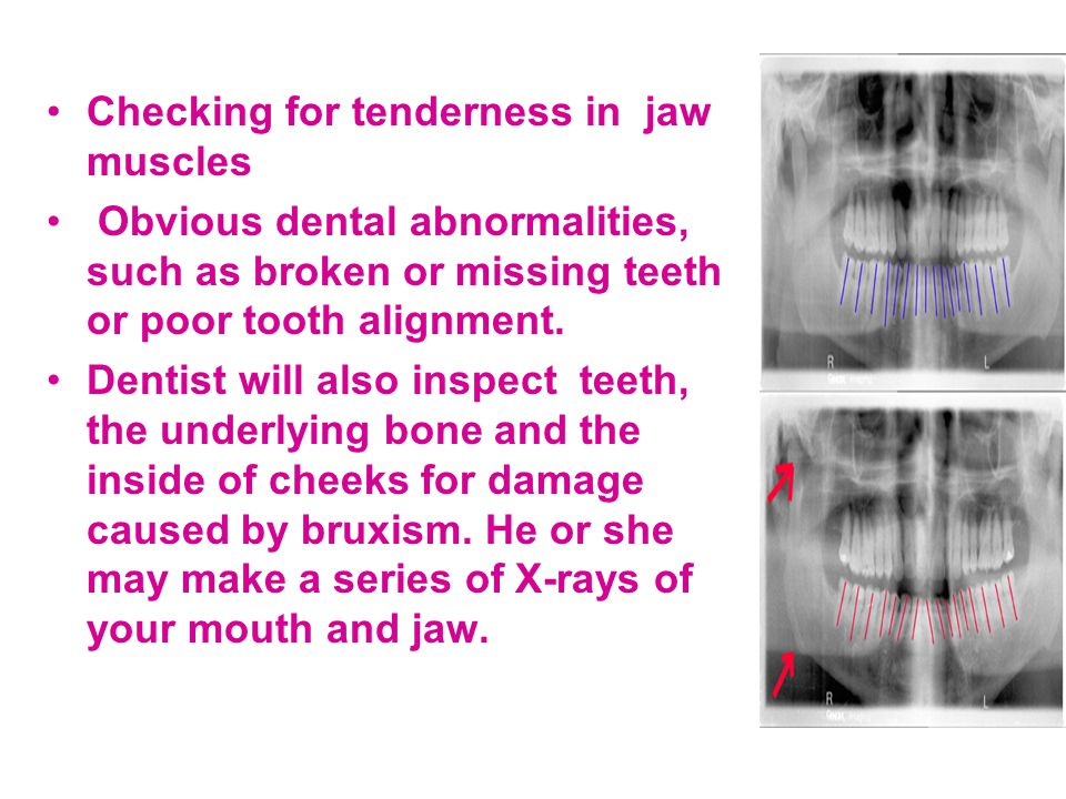 Checking for tenderness in jaw muscles Obvious dental abnormalities, such as broken or missing teeth or poor tooth alignment. Dentist will also inspec