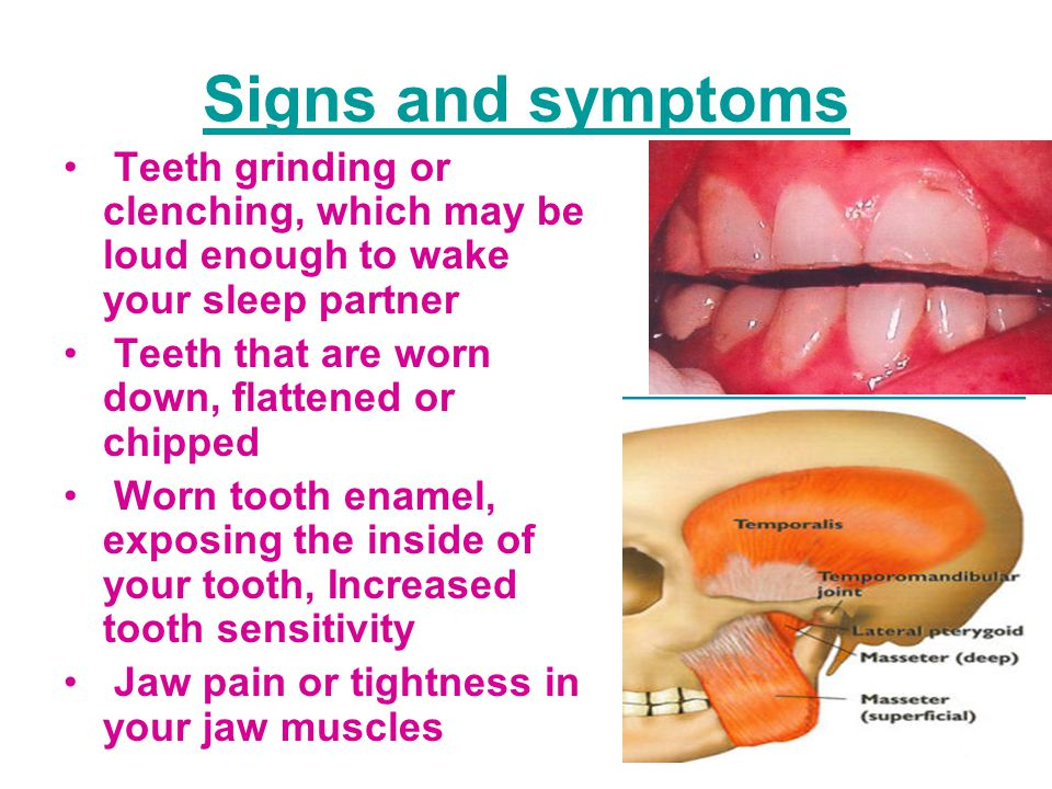 Signs and symptoms Teeth grinding or clenching, which may be loud enough to wake your sleep partner Teeth that are worn down, flattened or chipped Worn tooth enamel, exposing the inside of your tooth, Increased tooth sensitivity Jaw pain or tightness in your jaw muscles