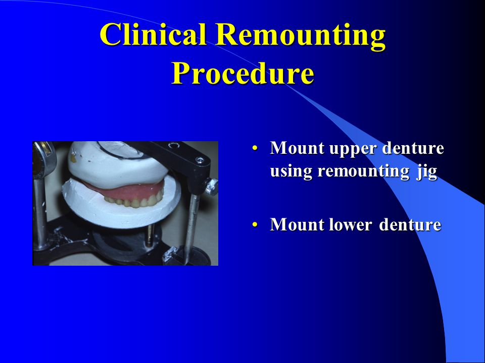 Clinical Remounting Procedure Mount upper denture using remounting jigMount upper denture using remounting jig Mount lower dentureMount lower denture